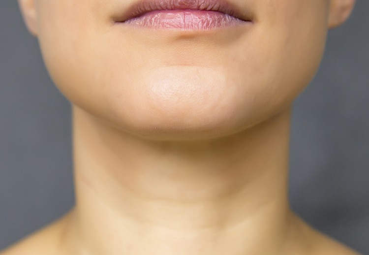 Image of a woman's neck