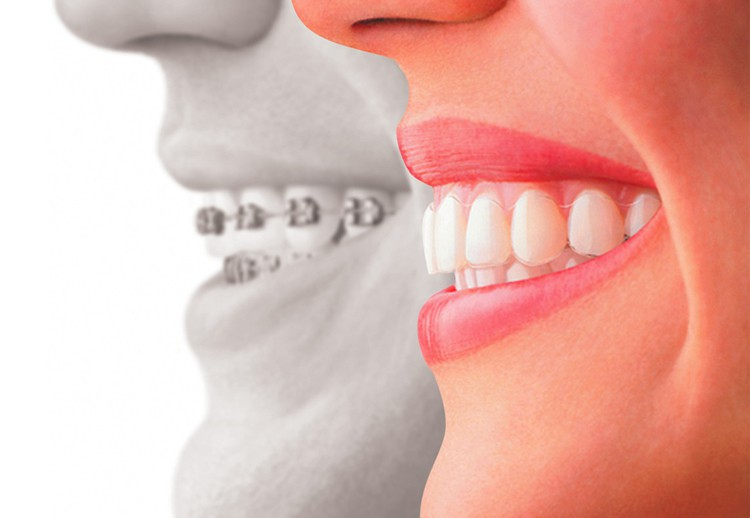Image of a comparison between braces and Invisalign