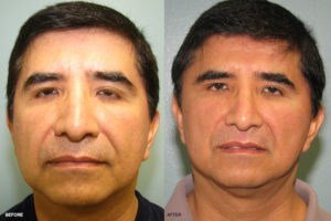 Dr. Andre Berger Before and After Gallery at Rejuvalife Vitality Institute