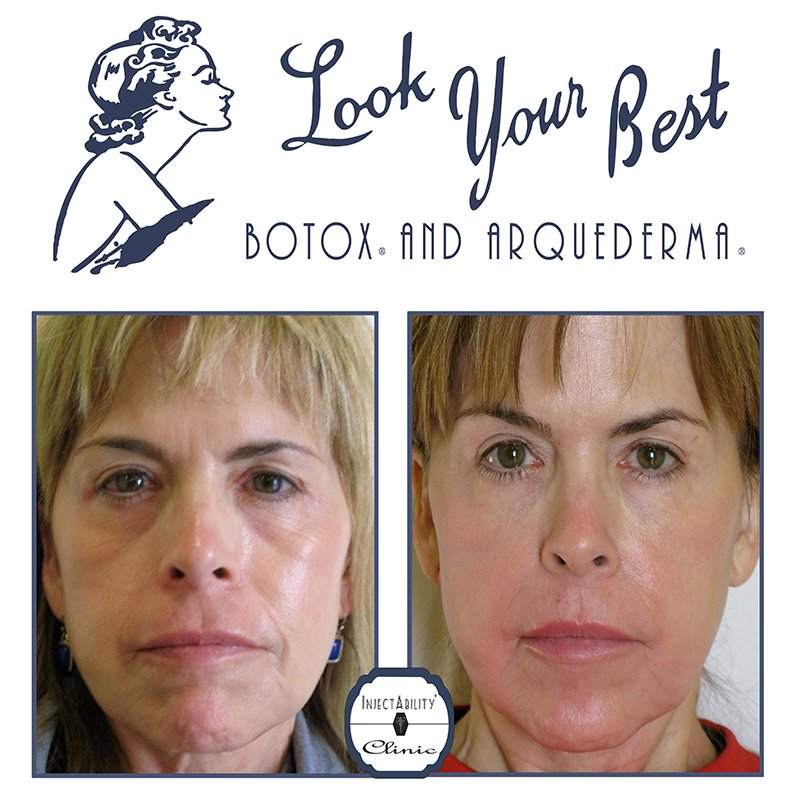 InjectAbility Institute Before and After
