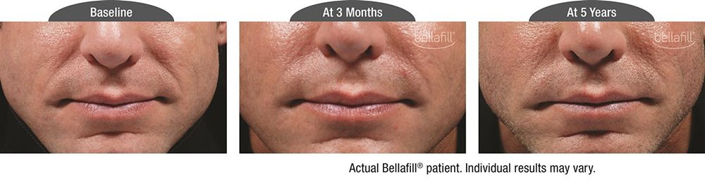 Bellafill® Before and After