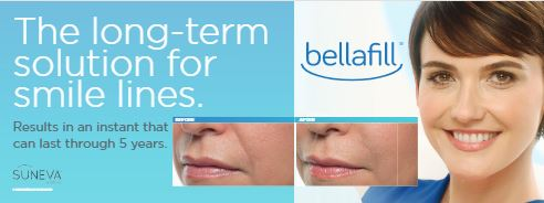 Bellafill® Long Term Solution for Smile Lines