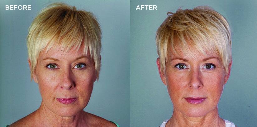 Bellafill® Blond Woman Before and After