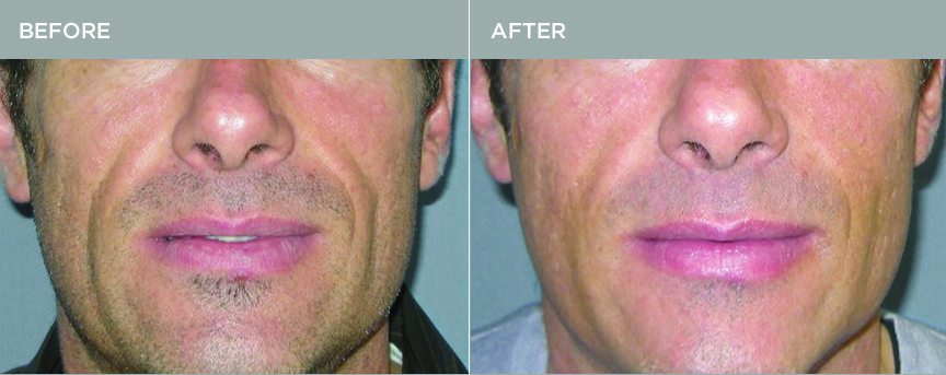 Bellafill® Man's Mouth Before and After