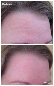 CrystalSmooth Before and After Image