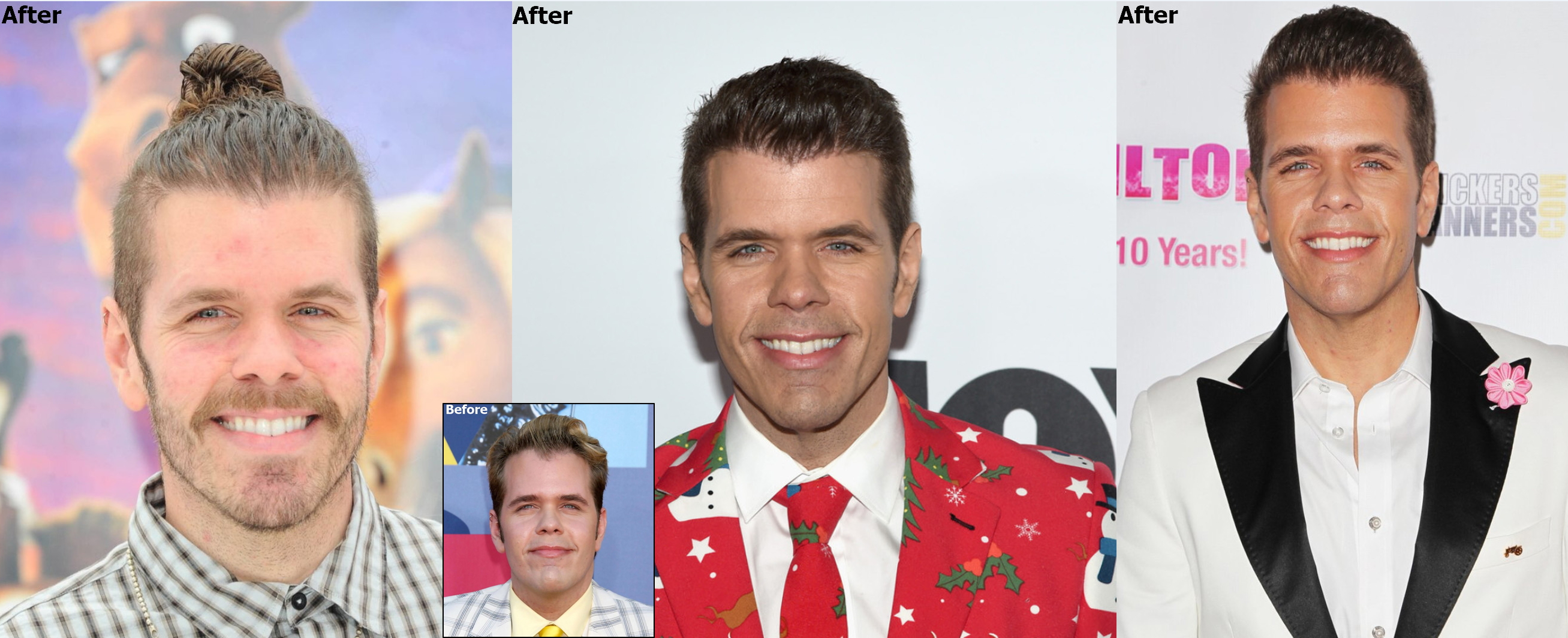 Perez Hilton Has Hair Transplant With Dr Baubac Beauty Wire Magazine
